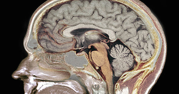 Doctors Discover That This 24-Year-Old Woman Was Born Without A Part Of Her Brain
